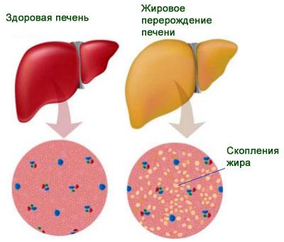 Отзывы о лечении гепатита с пегинтроном